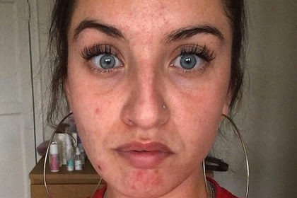 Британка пять лет страдала от недомоганий из-за плесени