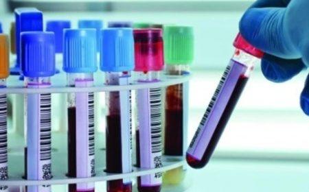 Пересмотрен протокол диагностики и лечения коронавирусной инфекции